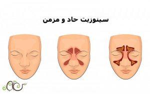سینوزیت چیست؟ علائم سینوزیت